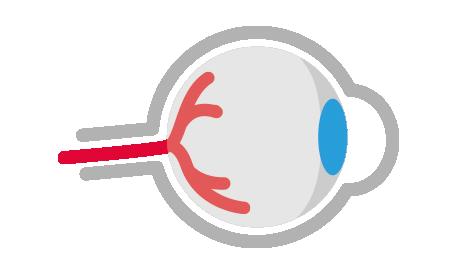 Näe hyvin - Suuri silmien terveyspäivä - Kaihi ja sen hoito